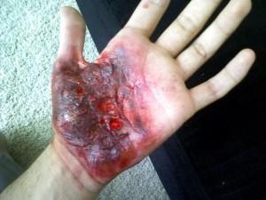 põlenud käsi