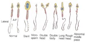 sperm_morph2