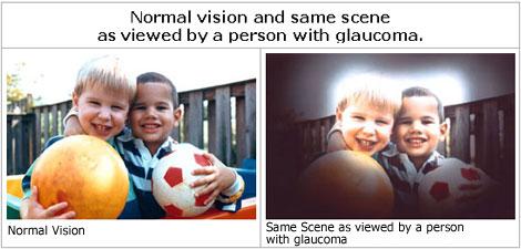 glaucoma-3